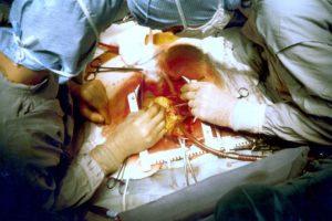 Verzonnen hartoperatie centraal in strafzaak